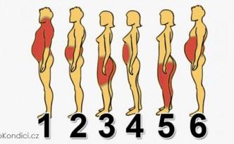obezita3